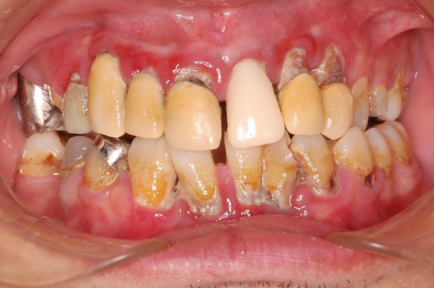歯茎 腫れ 子供